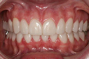 CASE 1: PORCELAIN VENEERS - After