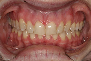 CASE 1: PORCELAIN VENEERS - Before